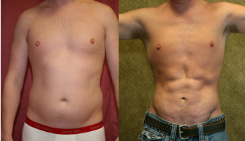 Free Diet Plans To Lose Belly Fat