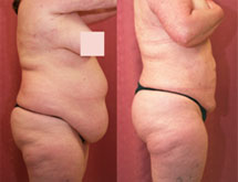 Large Volume Liposuction Before and After Picture