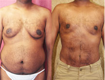 Male Liposuction Before and After Picture