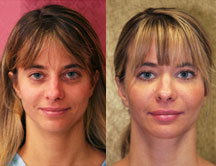Facial Fat Grafting and Liposuction Before and After Picture