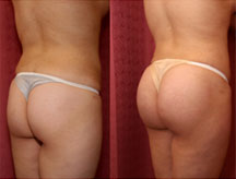 Brazillion Buttock Augmentation Before and After Picture