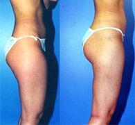 Thigh Liposuction Los Angeles | Inner and Outer Thigh ...