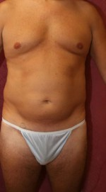 Liposuction with Tummy Tuck