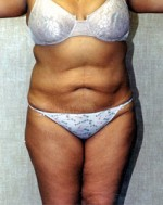 Large Volume Liposuction