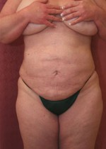 Liposuction Women Abdomen