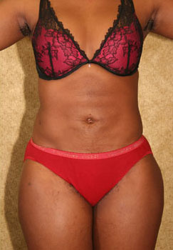 Patient 2357 Liposuction Women Abdomen Before And After