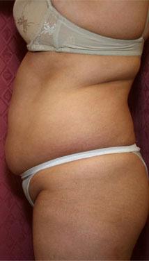 Large Volume Liposuction