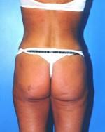 Liposuction Back & Buttocks