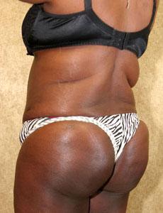 Brazilian Buttock Augmentation