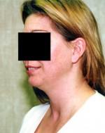 Liposuction Neck & Face